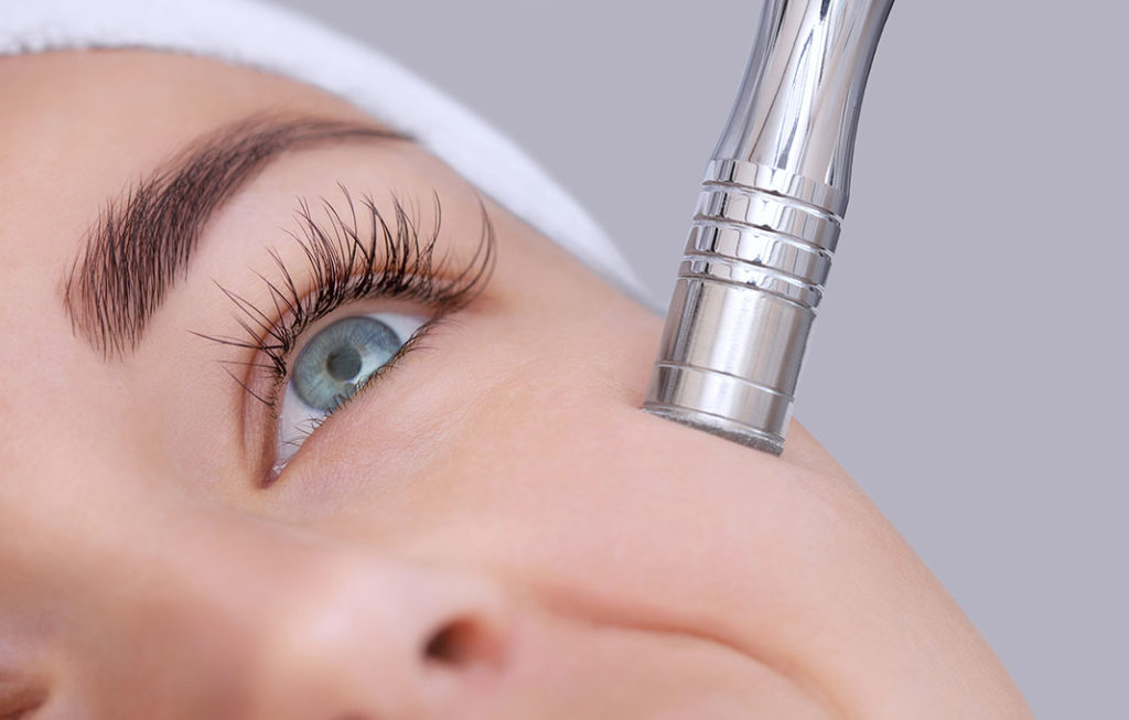 Microdermabrasion - incredible anti aging weapon