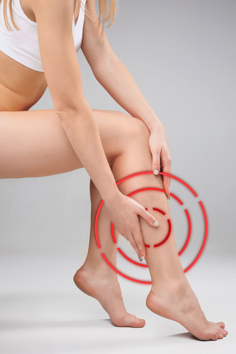 Varicose veins and spider veins – so you can prevent them with Vein gymnastics